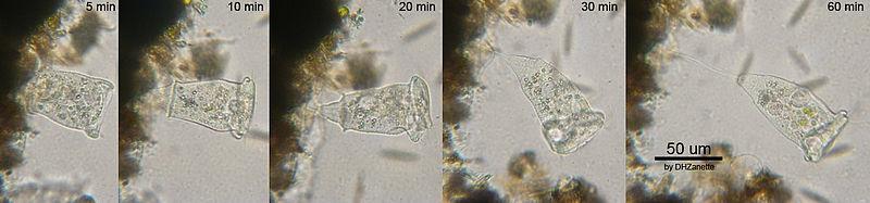 #ตัวอย่าง Vorticella spp. (ที่มา http://en.wikipedia.org/wiki/File:Vorticella_w1.jpg) เป็นโพรโทซัวที่มีลักษณะคือรูปร่างคล้ายกระดิ่งและจะมีก้านยึดติดกับวัตถุตามแหล่งน้ำ พบได้ัทั่วไป (เป็นพวก ciliate - มีขน)