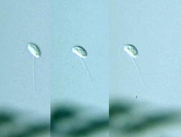#ตัวอย่าง Bodo saltans ที่มา http://protist.i.hosei.ac.jp/pdb/images/Mastigophora/Bodo/sp_2b.html) เป้นโพรโทซัวที่มีขนาดเล็กมาก รูปร่างลักษณะคล้ายเมล็ดมีแฟลกเจลลาด้านหน้าและด้านหลัง (เป็นพวกมีหนวด -flagellate)
